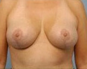 Breast Lift and Reduction Gallery - Patient 5950915 - Image 2