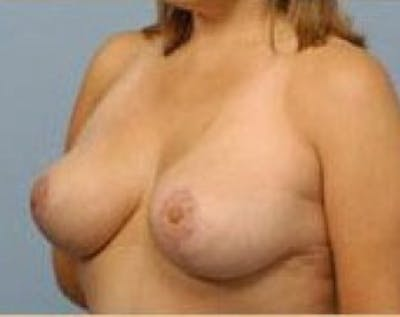 Breast Lift and Reduction Gallery - Patient 5950915 - Image 4