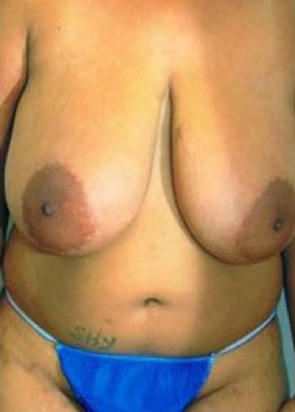 Breast Lift and Reduction Gallery - Patient 5950919 - Image 1