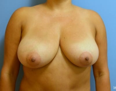 Breast Lift and Reduction Gallery - Patient 5950921 - Image 1
