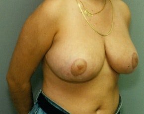 Breast Lift and Reduction Gallery - Patient 5950924 - Image 2