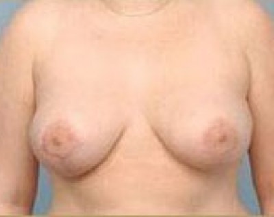 Breast Lift and Reduction Gallery - Patient 5950932 - Image 2
