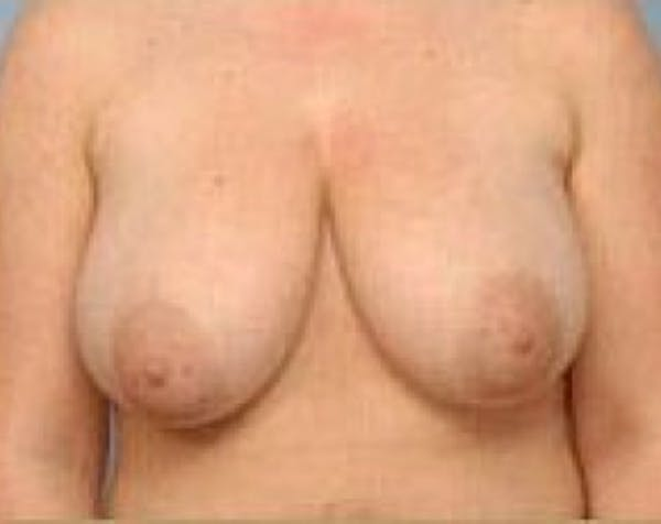 Breast Lift and Reduction Gallery - Patient 5950935 - Image 1