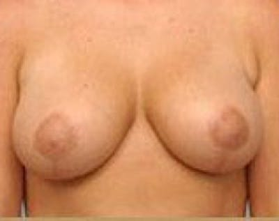 Breast Lift and Reduction Gallery - Patient 5950935 - Image 8