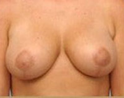 Breast Lift and Reduction Gallery - Patient 5950935 - Image 2