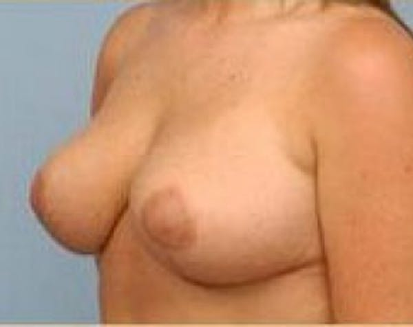 Breast Lift and Reduction Gallery - Patient 5950935 - Image 4