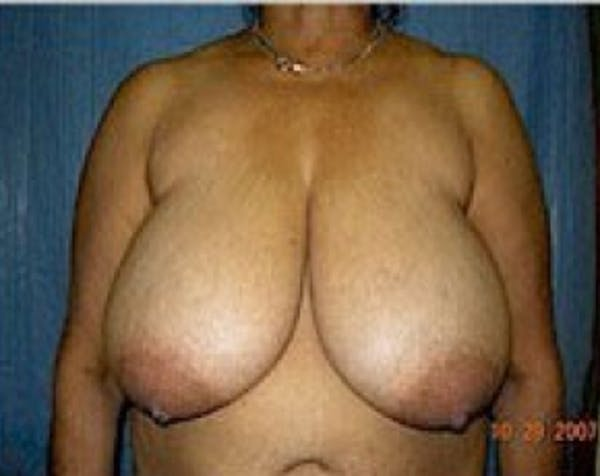 Breast Lift and Reduction Gallery - Patient 5950936 - Image 1