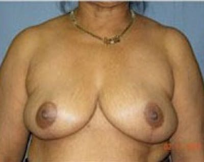Breast Lift and Reduction Gallery - Patient 5950936 - Image 9