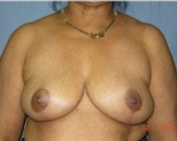 Breast Lift and Reduction Gallery - Patient 5950936 - Image 2