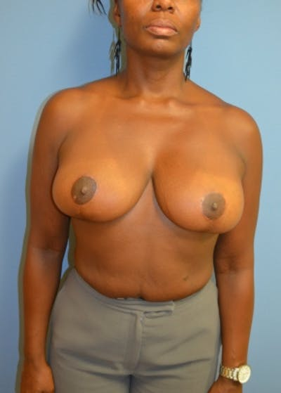 Breast Lift and Reduction Gallery - Patient 5950938 - Image 10