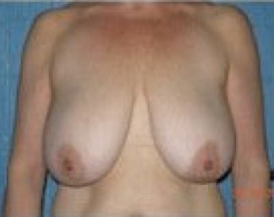 Breast Lift and Reduction Gallery - Patient 5950950 - Image 1