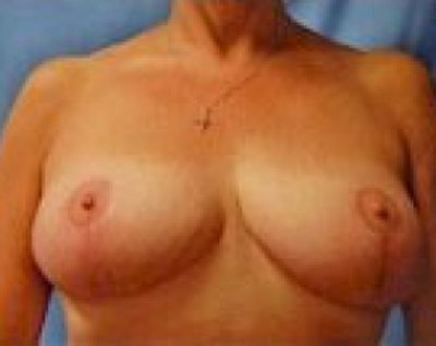 Breast Lift and Reduction Gallery - Patient 5950950 - Image 2