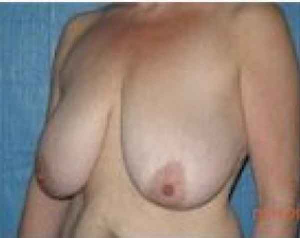 Breast Lift and Reduction Gallery - Patient 5950950 - Image 3