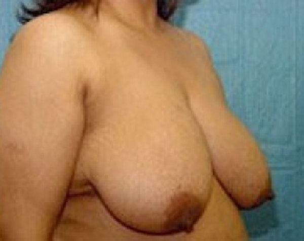 Breast Lift and Reduction Gallery - Patient 5950974 - Image 3