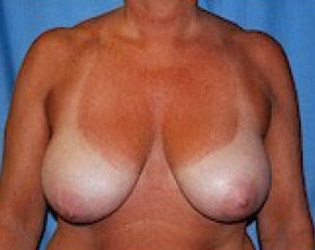 Breast Lift and Reduction Gallery - Patient 5951045 - Image 1