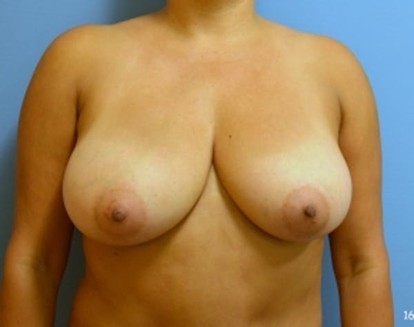 Breast Lift and Reduction Gallery - Patient 5951167 - Image 1