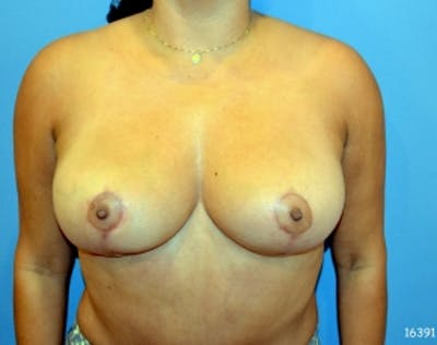 Breast Lift and Reduction Gallery - Patient 5951167 - Image 14