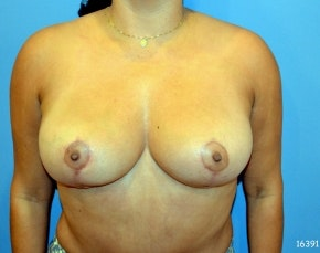 Breast Lift and Reduction Gallery - Patient 5951167 - Image 2
