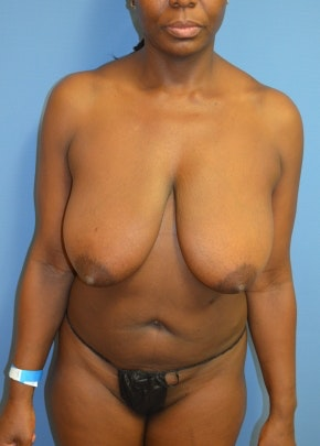 Breast Lift and Reduction Gallery - Patient 5951168 - Image 1