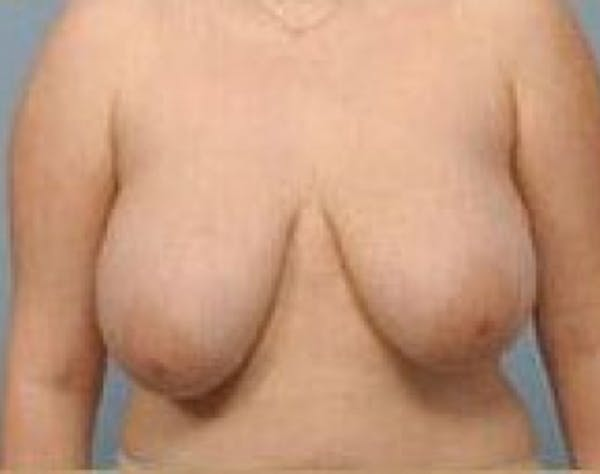 Breast Lift and Reduction Gallery - Patient 5951171 - Image 1