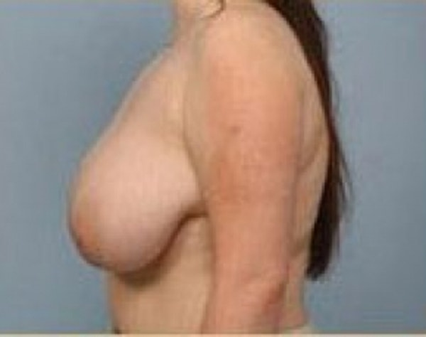Breast Lift and Reduction Gallery - Patient 5951171 - Image 3
