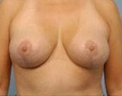 Breast Lift and Reduction Gallery - Patient 5951172 - Image 2
