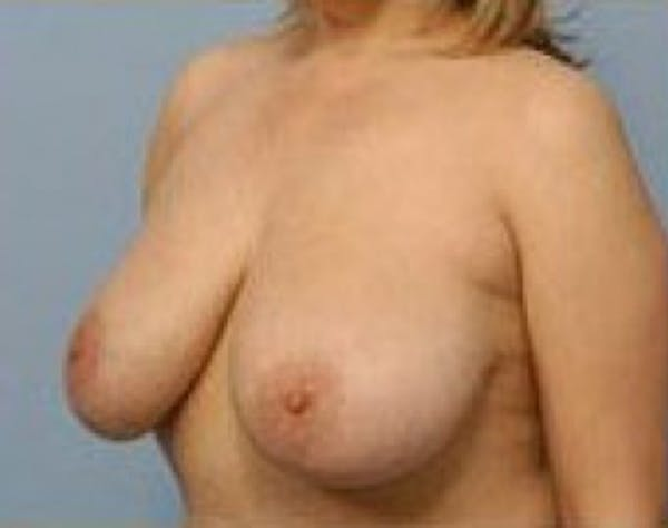 Breast Lift and Reduction Gallery - Patient 5951172 - Image 3