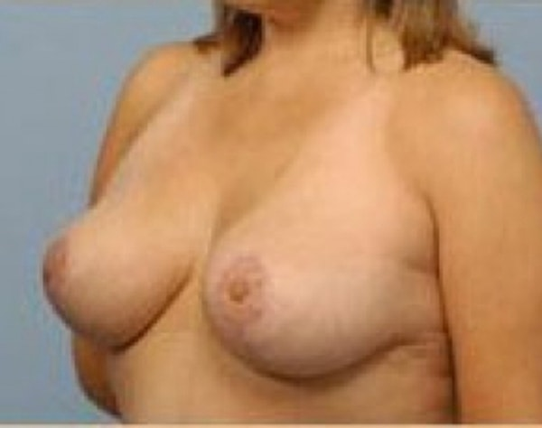 Breast Lift and Reduction Gallery - Patient 5951172 - Image 4
