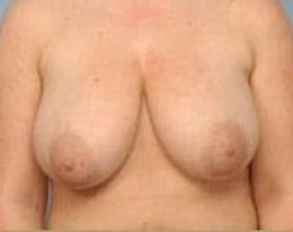 Breast Lift and Reduction Gallery - Patient 5951176 - Image 1