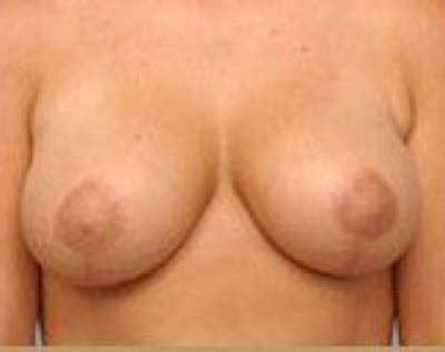 Breast Lift and Reduction Gallery - Patient 5951176 - Image 19