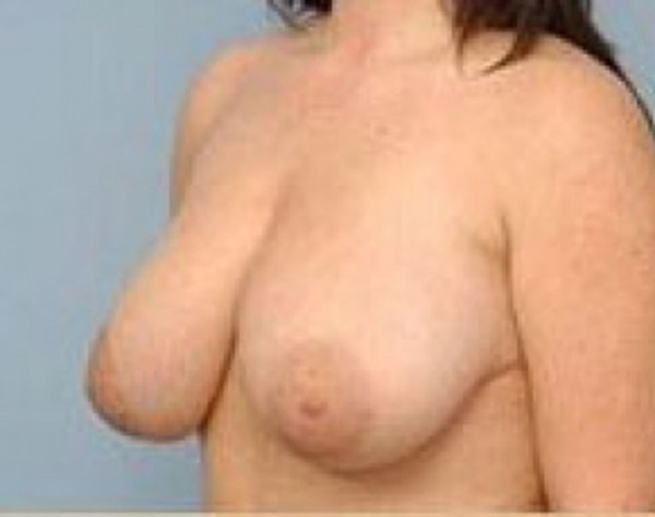 Breast Lift and Reduction Gallery - Patient 5951176 - Image 3