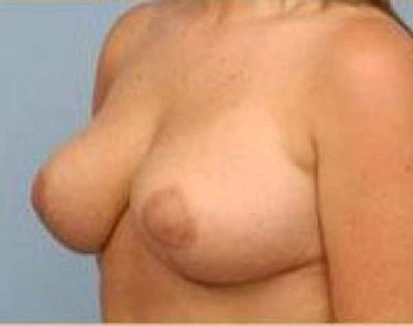 Breast Lift and Reduction Gallery - Patient 5951176 - Image 4