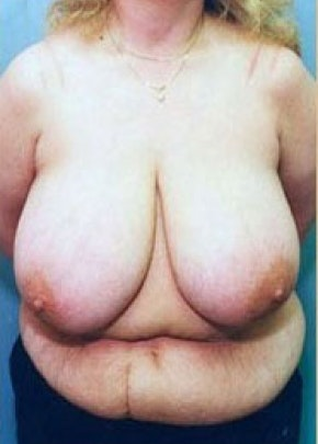 Breast Lift and Reduction Gallery - Patient 5951198 - Image 1