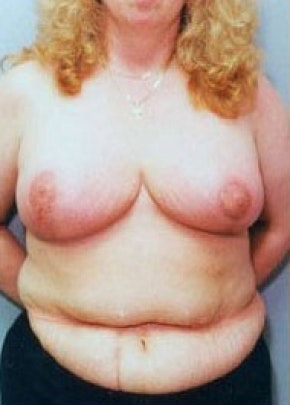 Breast Lift and Reduction Gallery - Patient 5951198 - Image 2