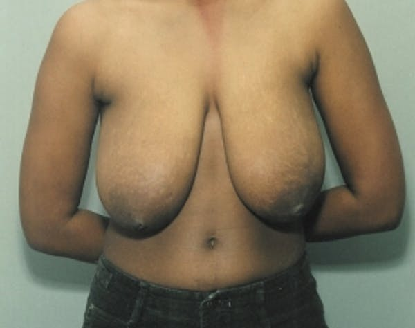 Breast Lift and Reduction Gallery - Patient 5951199 - Image 1
