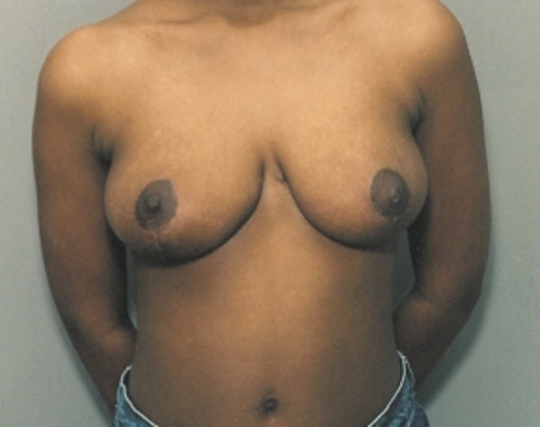 Breast Lift and Reduction Gallery - Patient 5951199 - Image 2