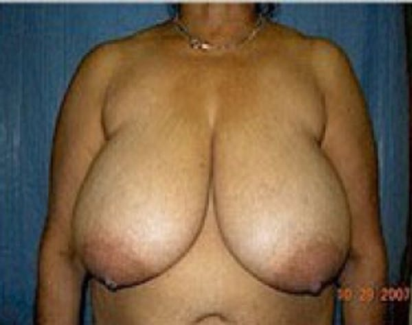 Breast Lift and Reduction Gallery - Patient 5951202 - Image 1