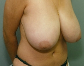 Breast Lift and Reduction Gallery - Patient 5951203 - Image 1