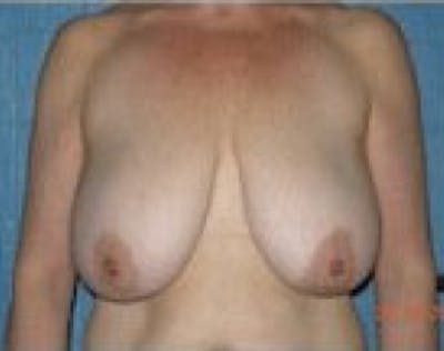 Breast Lift and Reduction Gallery - Patient 5951204 - Image 1