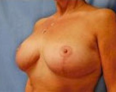 Breast Lift and Reduction Gallery - Patient 5951204 - Image 4