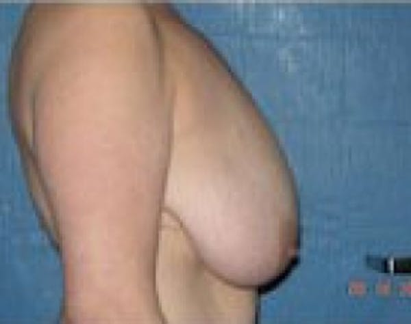 Breast Lift and Reduction Gallery - Patient 5951204 - Image 5