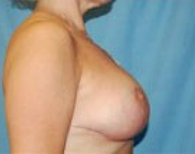 Breast Lift and Reduction Gallery - Patient 5951204 - Image 6