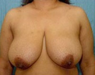 Breast Lift and Reduction Gallery - Patient 5951207 - Image 1