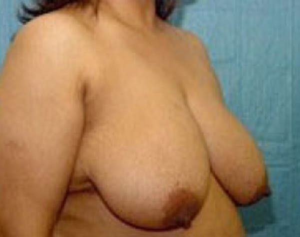 Breast Lift and Reduction Gallery - Patient 5951207 - Image 3