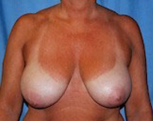 Breast Lift and Reduction Gallery - Patient 5951209 - Image 1