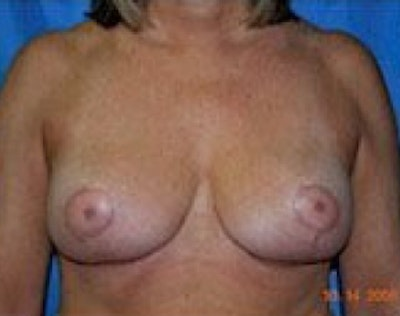 Breast Lift and Reduction Gallery - Patient 5951209 - Image 2