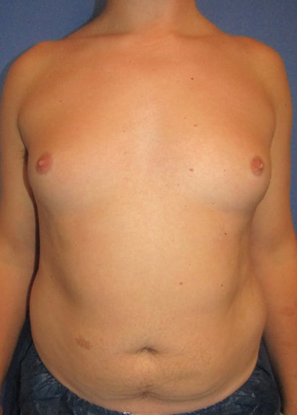 Male Breast Reduction Gallery - Patient 5951215 - Image 1