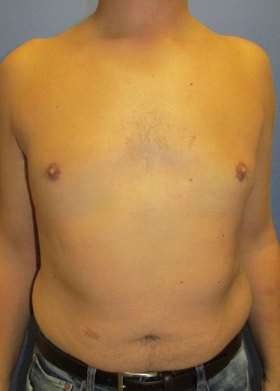 Male Breast Reduction Gallery - Patient 5951215 - Image 2