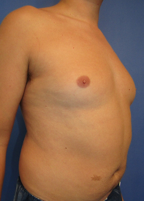 Male Breast Reduction Gallery - Patient 5951215 - Image 3