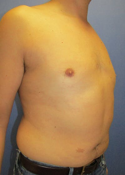 Male Breast Reduction Gallery - Patient 5951215 - Image 4